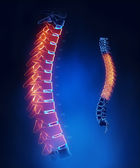Thoracic spine anatomy in blue detail — Stock Photo