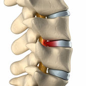 Spinal cord under pressure of bulging disc — Stockfoto