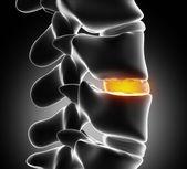 Degeneración del disco por osteofito - cerrar — Foto de Stock