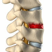 Disc degeneration by osteophyte formation lateral view — Stock Photo