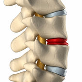 Degenerated disc in spine — Stock Photo