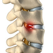 Disc herniated — Foto de Stock