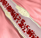 Coronary atherosclerosis desease — Stock Photo