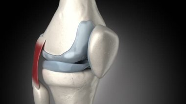Painful knee arthritis animation — Stock Video