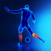 Strained calf muscle concept in x-ray — Stock Photo