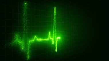 Ekg animation — Stock Video #14928151
