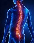 可见脊椎的人 — 图库照片