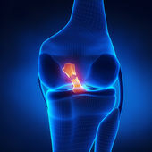 Torn Anterior Cruciate Ligament — Stock Photo