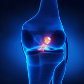 Torn Posterior Cruciate Ligament — Stock Photo