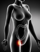 Female HEMORRHOIDS concept x-ray lateral view — Stock Photo