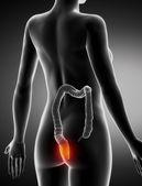 Hemoroidy kobiece koncepcja anatomii rentgenowskiej widok tylnej — Zdjęcie stockowe