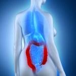 Постер, плакат: Woman colon anatomy