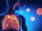 Influenza infection — Stock Photo