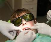 Laser dental examination — Stockfoto