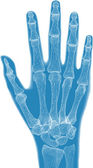 Blue hand anatomy — Stock Photo