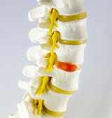 Vertebra model — Stock Photo
