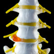 Spine model, vertebra model — Stock Photo #23130202