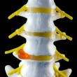 Spine model, vertebra model — Stockfoto #23130202