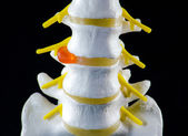 Spine model, vertebra model — Stock Photo