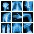 Stock Photo: Collage of many X-rays in very good quality.
