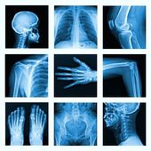 Collage of many X-rays in very good quality. — Stock Photo
