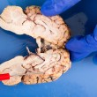 Stock Photo: Longitudinal cross-section of cow brain