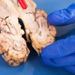 Cross-section of cow brain — Stock Photo #37609443