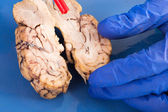 Cross-section of a cow brain — Stock Photo