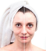 Woman with spotty skin with deep pores and blackhead and healed — Stock Photo