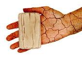 干性皮肤 — 图库照片