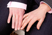Two female hands with wedding rings — Stock Photo