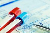 De tests van het bloed van de biochemie — Stockfoto