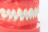 Model of the jaw with teeth — Stock Photo