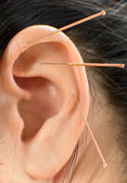 Acupuncture — Stock Photo
