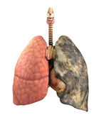 Lung Disease Before and After — Stock Photo