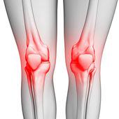 Human knee pain artwork — Stock Photo