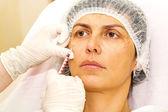 Tratamento cosmético com injeção de botox — Fotografia Stock