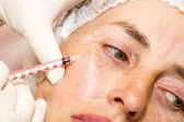 Kozmetik tedavisi botox enjeksiyonu ile — Stok fotoğraf