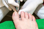 Process of pedicure — 图库照片
