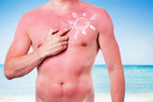 Man with a sunburn — Stock Photo