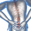 Anatomical vision back pain — Stock Photo