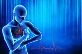 心脏病发作的概念 — 图库照片