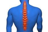 Anatomical vision back pain — Stock Photo