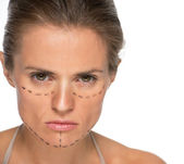Concerned woman with plastic surgery marks — Stock Photo