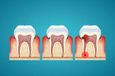 Stages progress caries on human teeth and disease gum — ストックベクタ