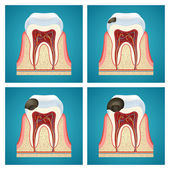 Stages progress caries on human teeth — Vector de stock