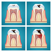 Stages progress dental caries — Stock Vector