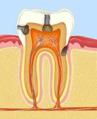 Carious human tooth — Stock Photo