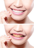 Woman teeth before and after whitening — Stock Photo