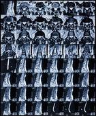 MRI — Stock Photo